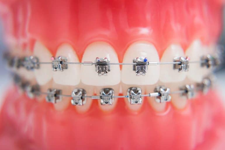 Gingival Recession & Orthodontic