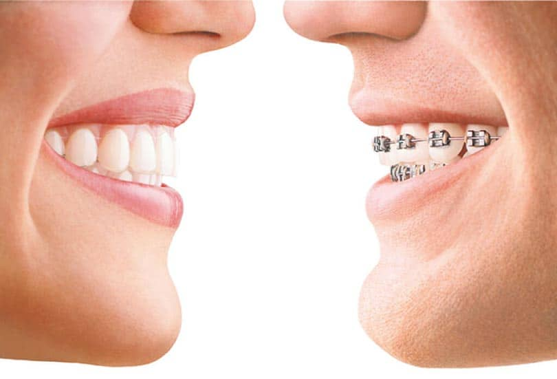 Patient wearing invisalign vs other one with metal braces