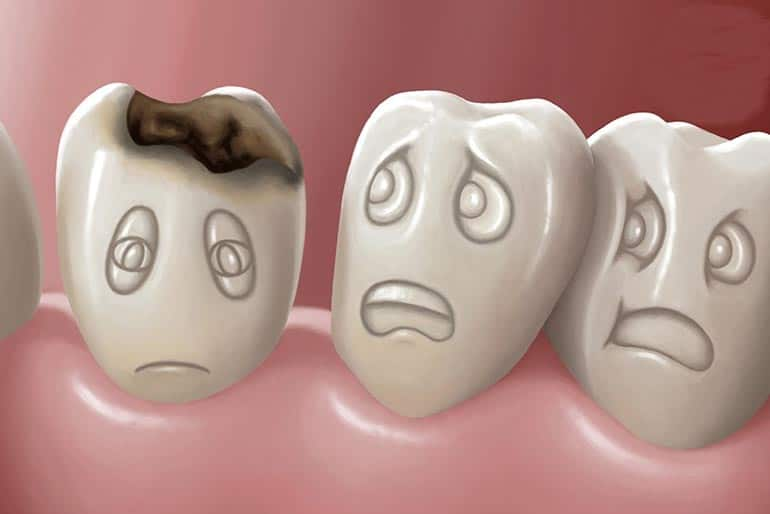 Graphical tooth decay symptoms