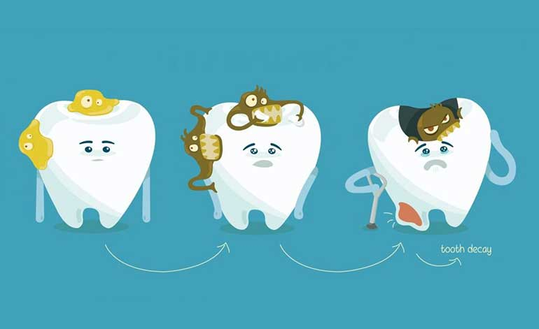 Tooth decay step by step