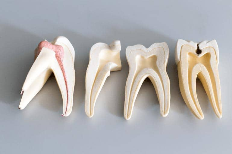 Inside teeth and root is showing on artificial teeth