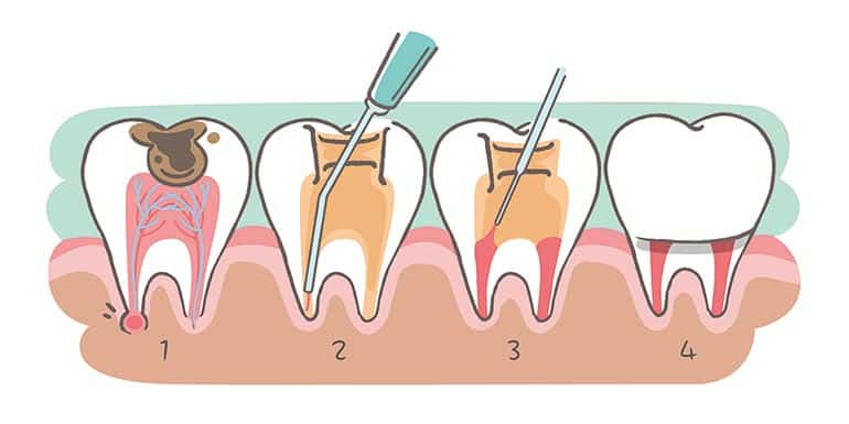 An infography showing root canal treatment