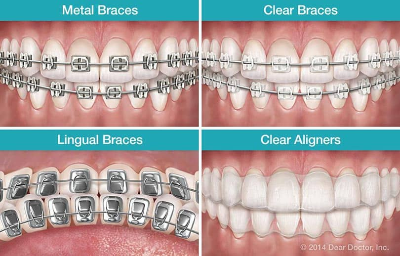 4 main types of dental braces