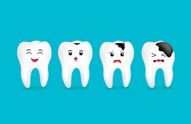Graphical stages of tooth decay