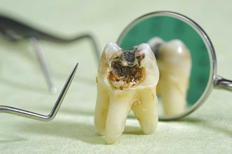Signs of decay in a tooth