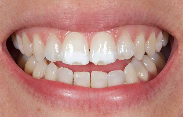 Initial white spots on teeth