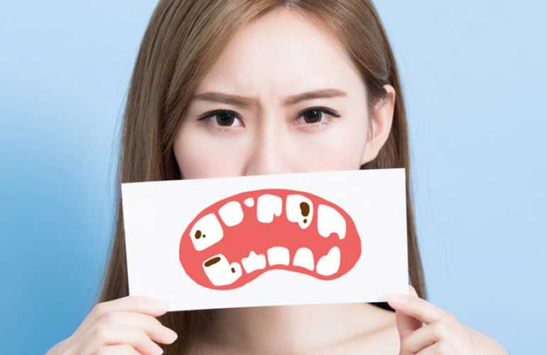 Woman holding an image of decayed tooth