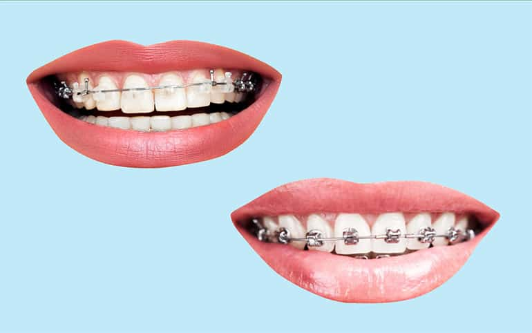 Cermic and metal braces