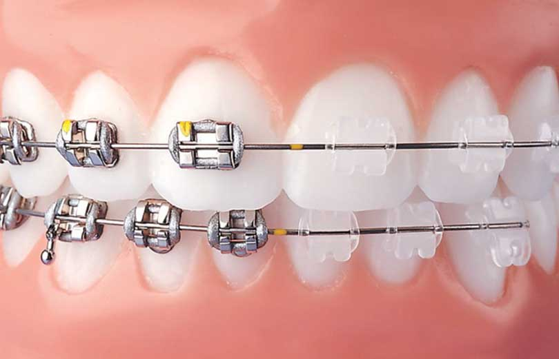 Clear vs metal braces