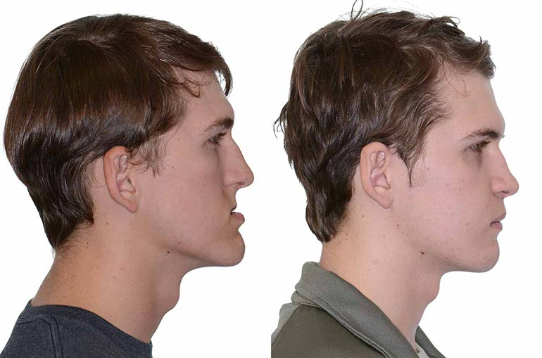 Man face before and after orthodontic surgery