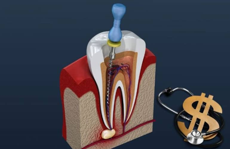 Root canal graphical image and dollar sign