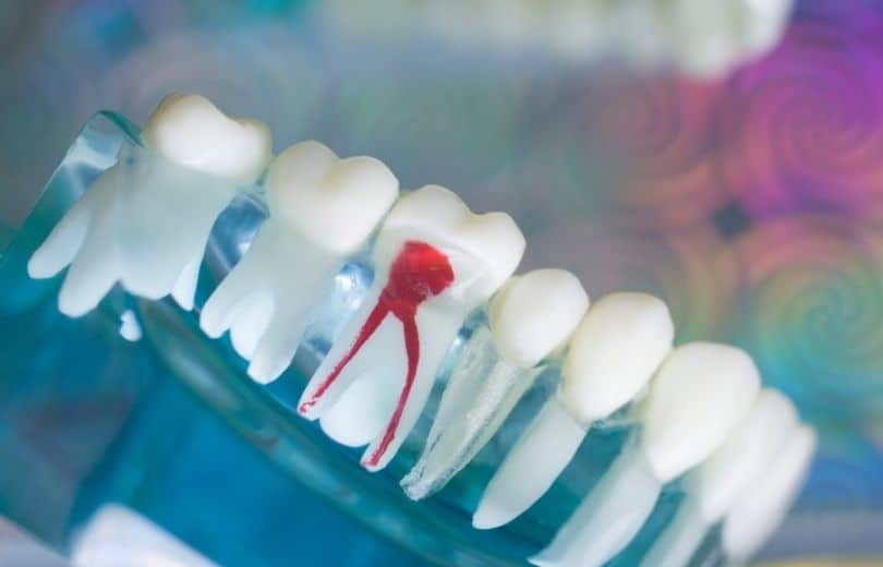 Most Safe and Effective Ways to Ease the Root Canal Pain