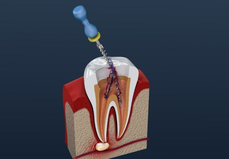 a tooth and root canal treatment on it