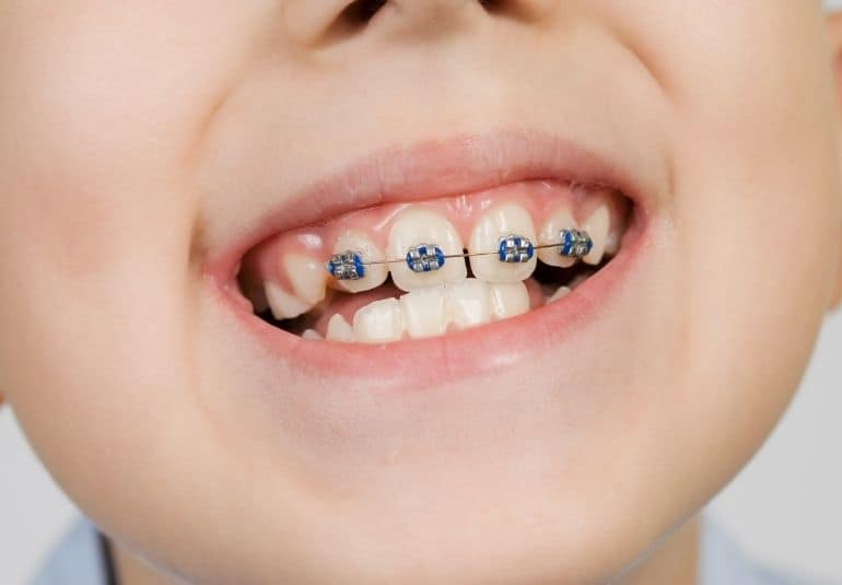 Braces in the mouth of a child