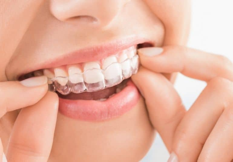 A lady is smiling and holding an Invisalign in her mouth