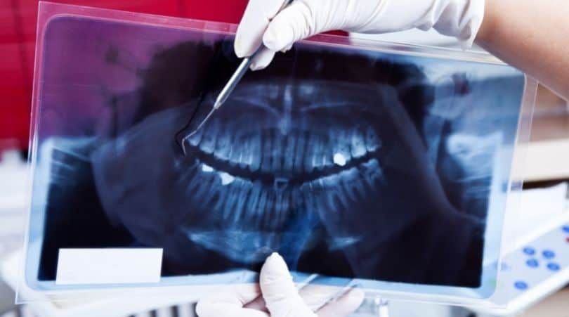 A dentist is holing a dental X-Ray image