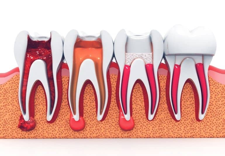 four teeth that is treating by Non-Surgical Root Canal