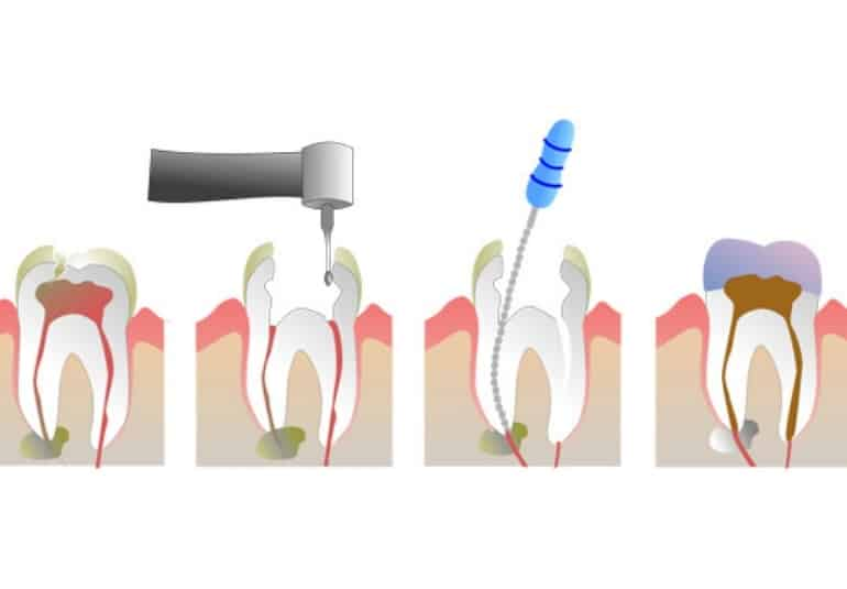 a tooth in the pulpotomy and pulpectomy treatment process