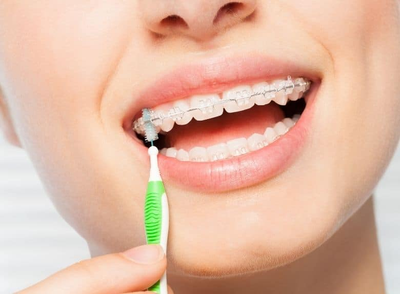 A woman is using interdental brush for her orthodontic braces