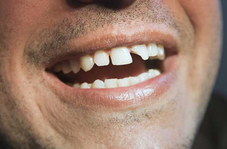 Man with front chipped tooth