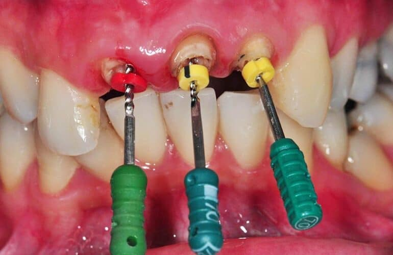 Root canal treatment on three front teeth